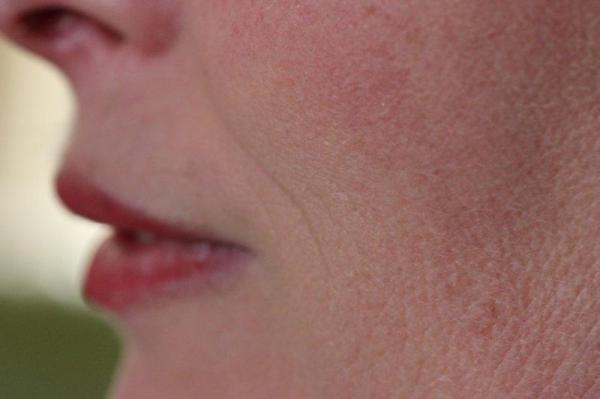 Laseren voorbehouden aan arts en huidtherapeut